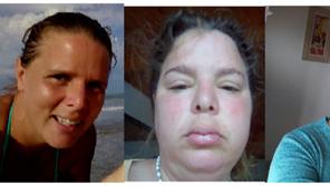 Alergias que no son alergias