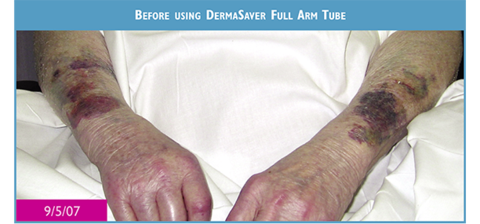 An elderly persons pressure kin tears on forearms before using DermaSaver
