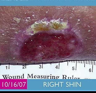 wound on frail skin