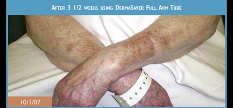 Elderly residents vastly improved skin tears on forearms after using DermaSaver Full Arm Tubes for 3 weeks