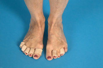 Pressure relief for painful toes