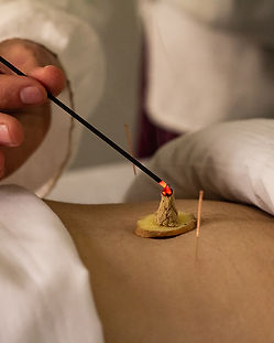 moxibution acupuncture theapy chinese medicine