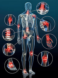 Formation rhumatisme, arthrite et arthrose   Cybelplace