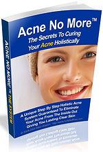 Plus jamais d'acné | Cybelplace
