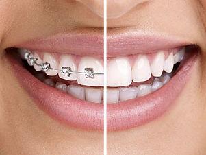 village-orthodontics-braces-invisalign-f