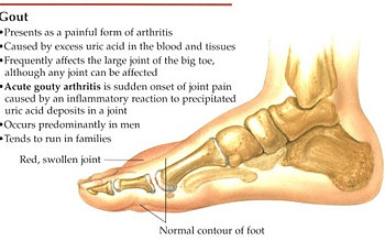treat gout in thumb effect of high uric acid on body vegetables to avoid for uric acid