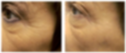 Wrinkle-Photofacial-before-after-2.png