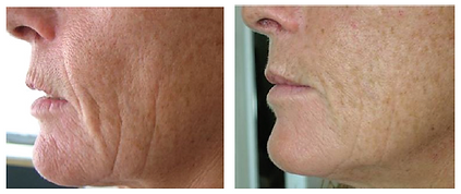 Wrinkle-Photofacial-before-after-3.png