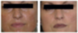 Wrinkle-Photofacial-before-after-4.png