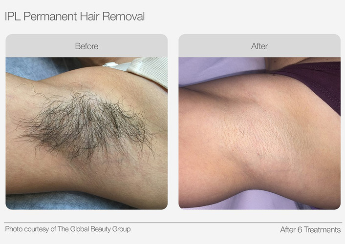 IPL Hair Removal Before & After 03.jpg