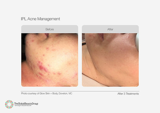 IPL Acne Management Before & After 03.jp