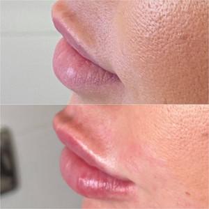 Lip Plump Enhancement