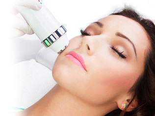 What You Need to Know About RF Skin Tightening