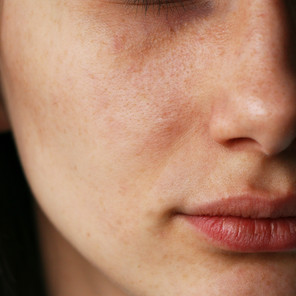 How to get rid of blackheads and keep them away