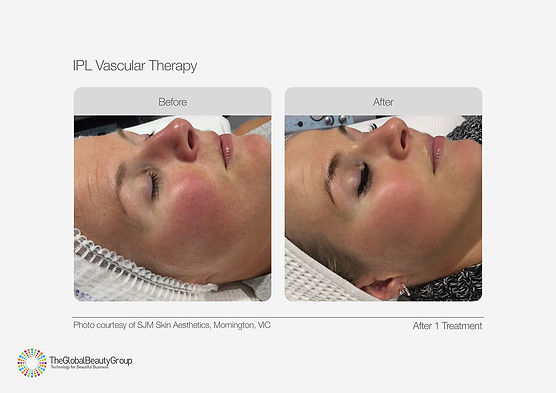 IPL Vascular Therapy Before & After 04.j
