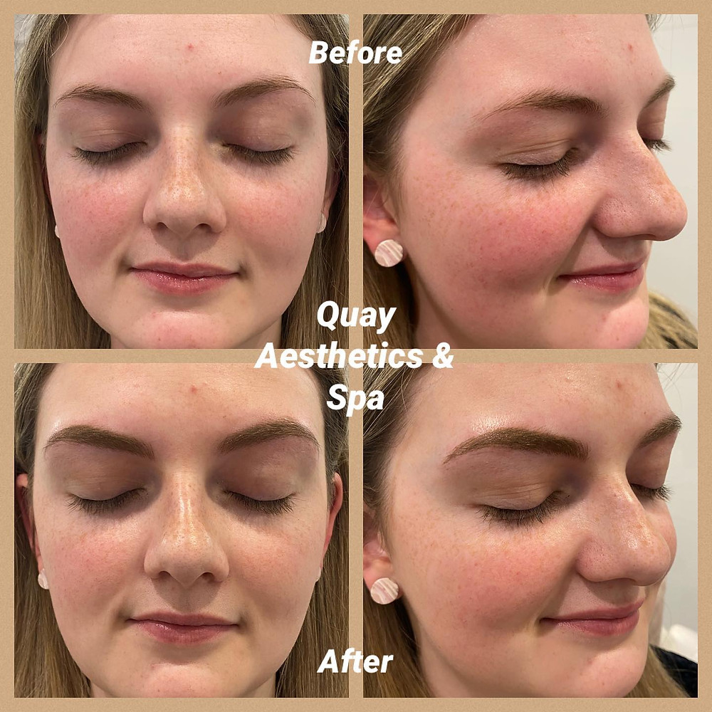 Before and after images of Microblading at Quay Aesthetics & Spa