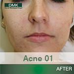 After DMK Acne Program