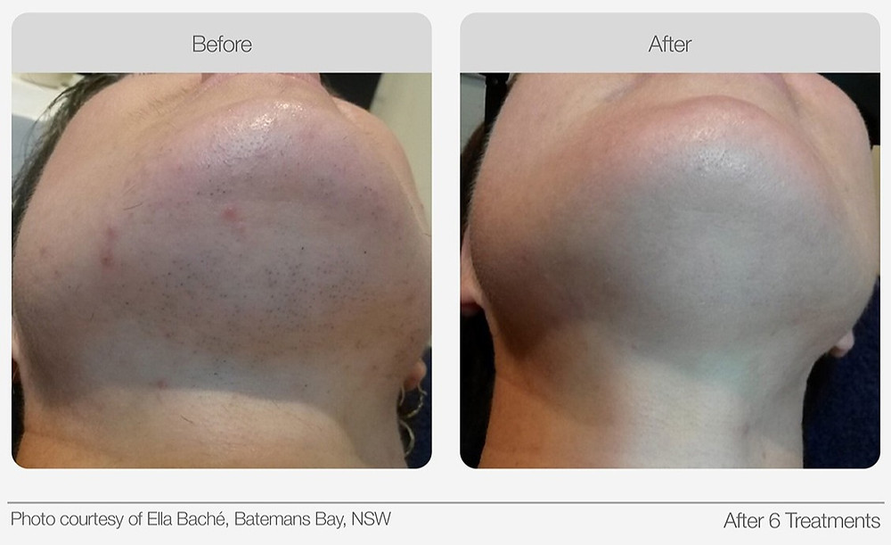IPL Hair Removal Before and after image 3