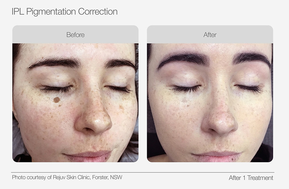 IPL Pigmentation Correction Before and After Images