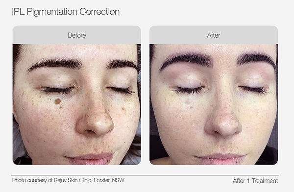 IPL Pigmentation Correction Before & Aft