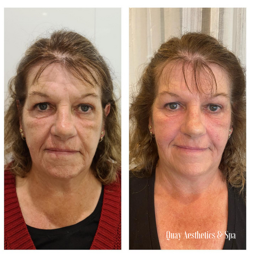 Anti-Wrinkle before and after