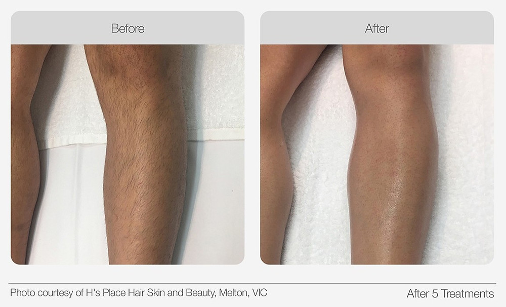 IPL Hair Removal Before and after image 2