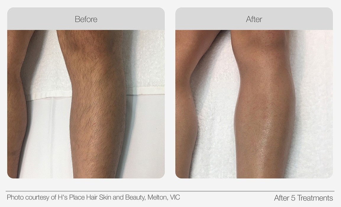 IPL Hair Removal Before & After 04_edite