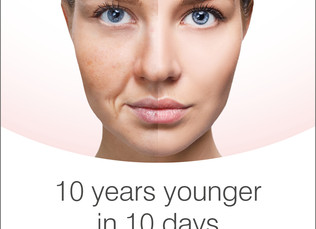 Look 10 Years Younger in 10 Days with DMK's RP & Pro Alpha Peel