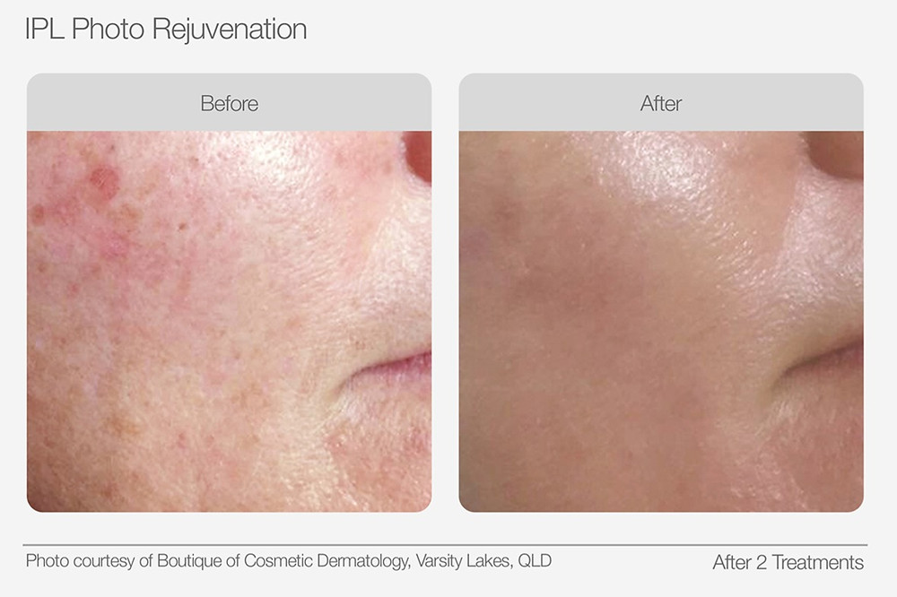 IPL Photo Rejuvenation Before and After Images
