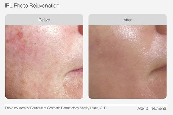 IPL Photo Rejuvenation Before & After 03
