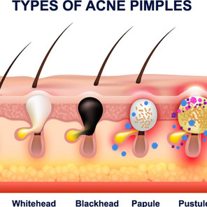 What causes acne and pimples?