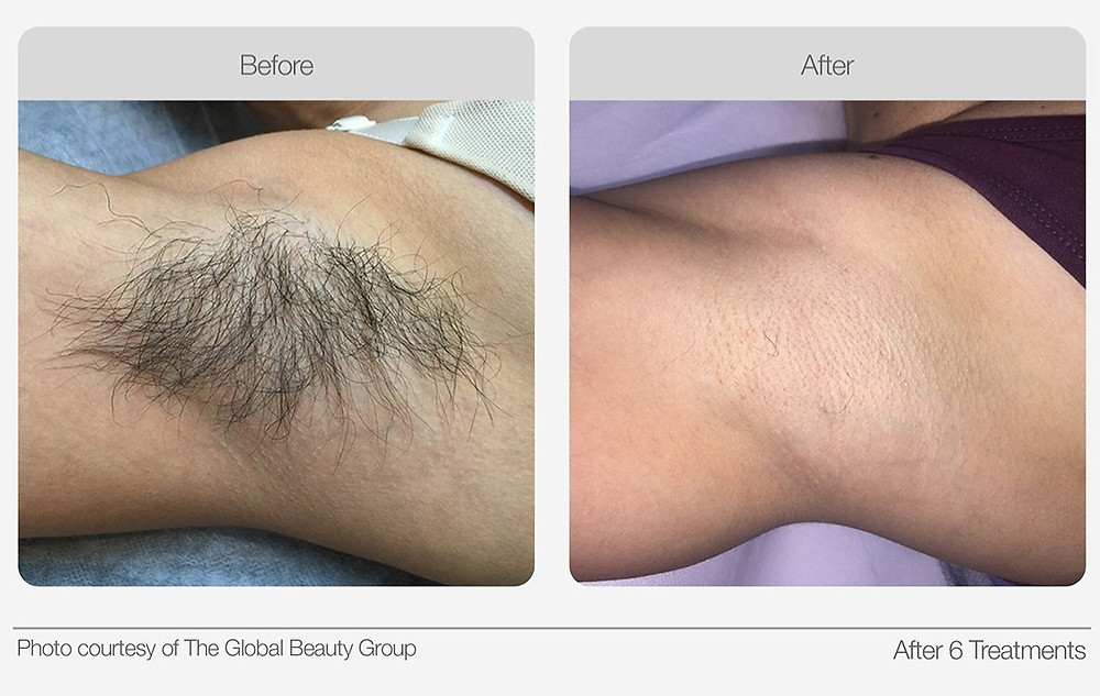 IPL Hair Removal Before and after image 1