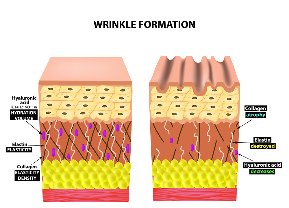 Antiwrinkle injection