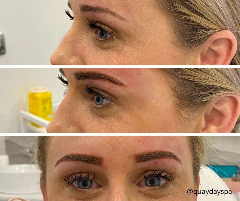 Microblading at Quay Aesthetics & Spa