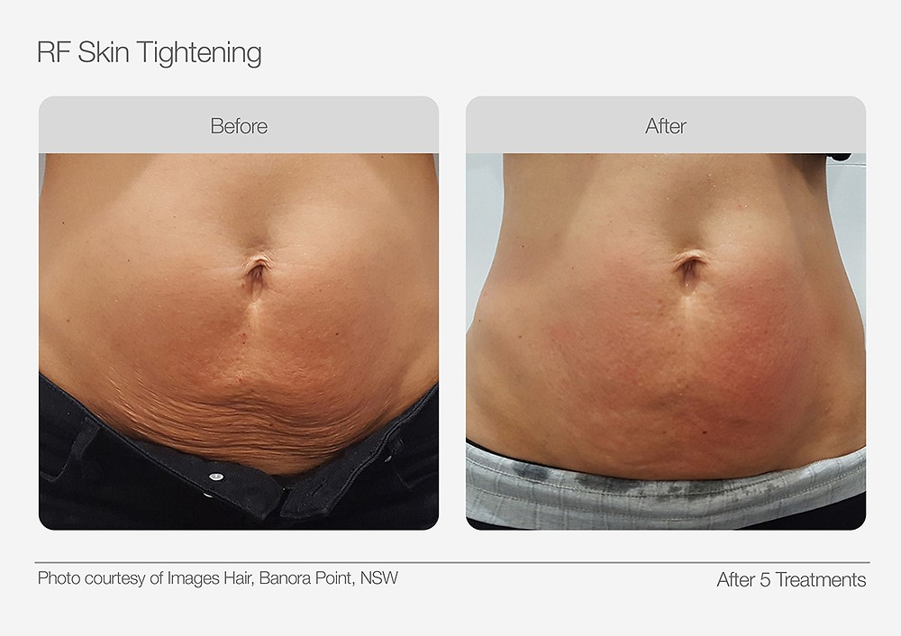 Radio Frequency Skin Tightening Before and After Images 1
