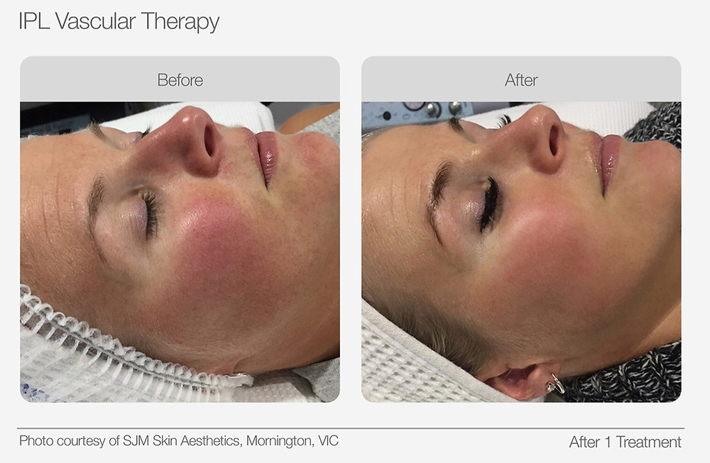 IPL Vascular Therapy Before and After Images
