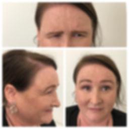 before anti-wrinkle injection.jpg