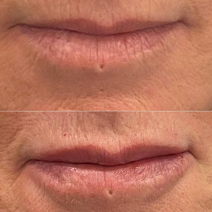 Lip Flip and Augmentation