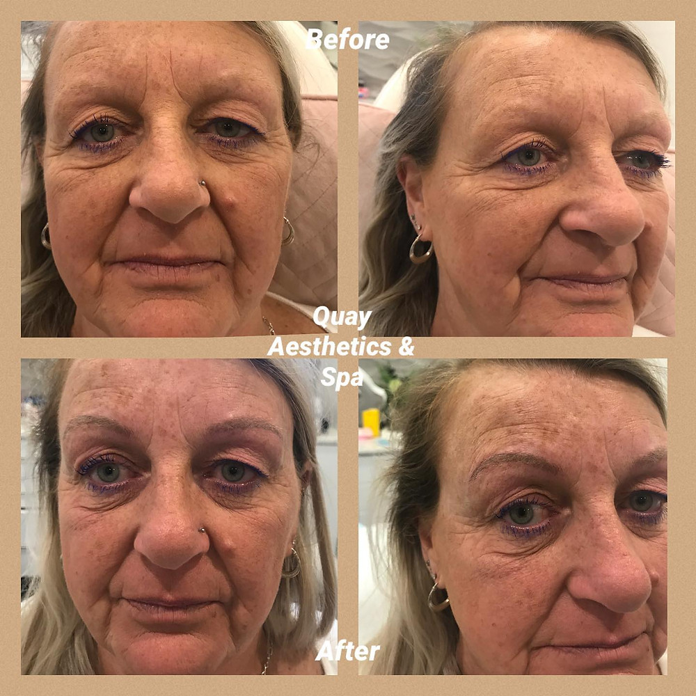 Before and after images at Quay Aesthetics & Spa