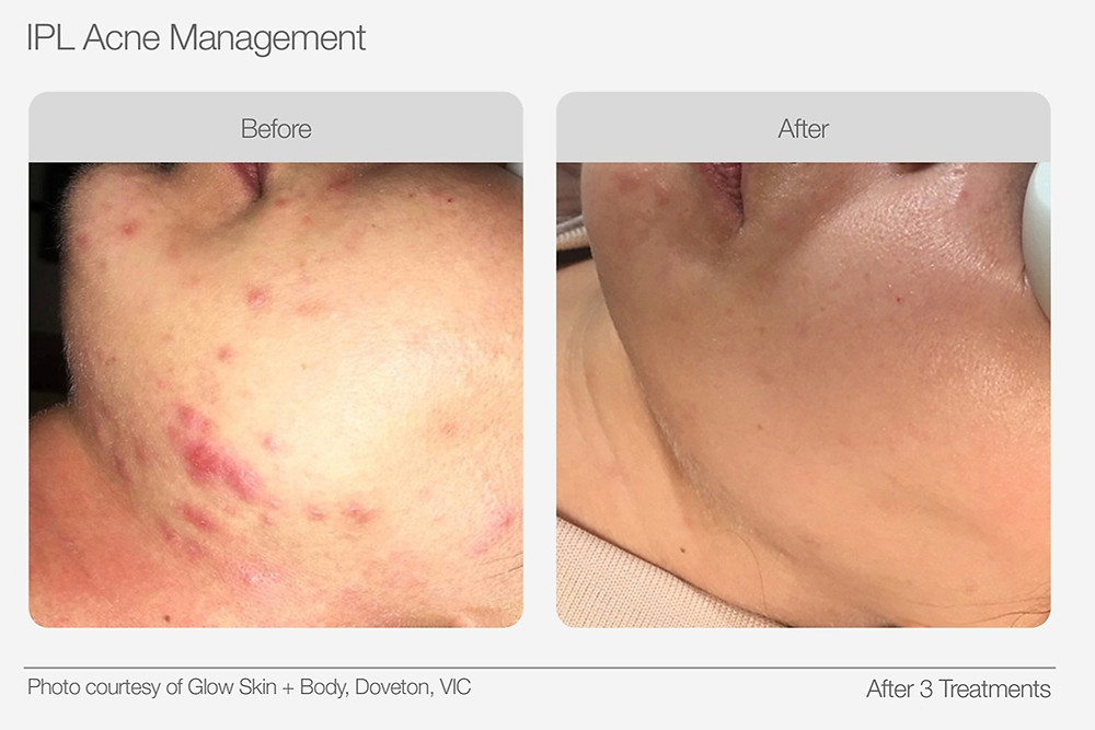 IPL Acne Management Before and After Images
