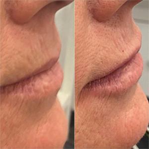 Lip Flip and Augmentation Profile