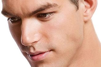 Depilación láser de diodo facial masculino