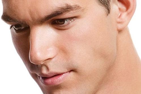 Depilación facial masculina láser de diodo