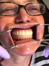 Teeth Bridges.JPG