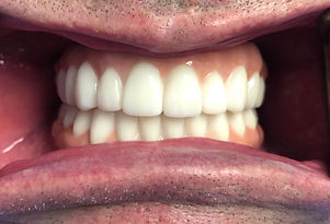 Denture Replacement.JPG