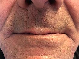 Zircteeth malden ma.JPG