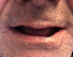 Dental Implants - Malden - MA