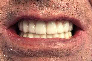 Dental Implants After .JPG