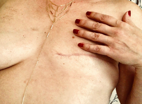 Let's Get Physical – Sex After Mastectomy