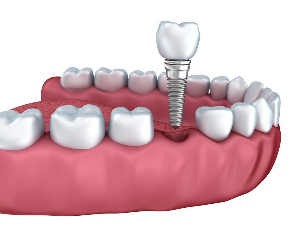 Implant (Promotion Deal)